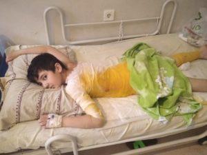 Гурбановы. В семье служителя из Азербайджана обгорел мальчик.